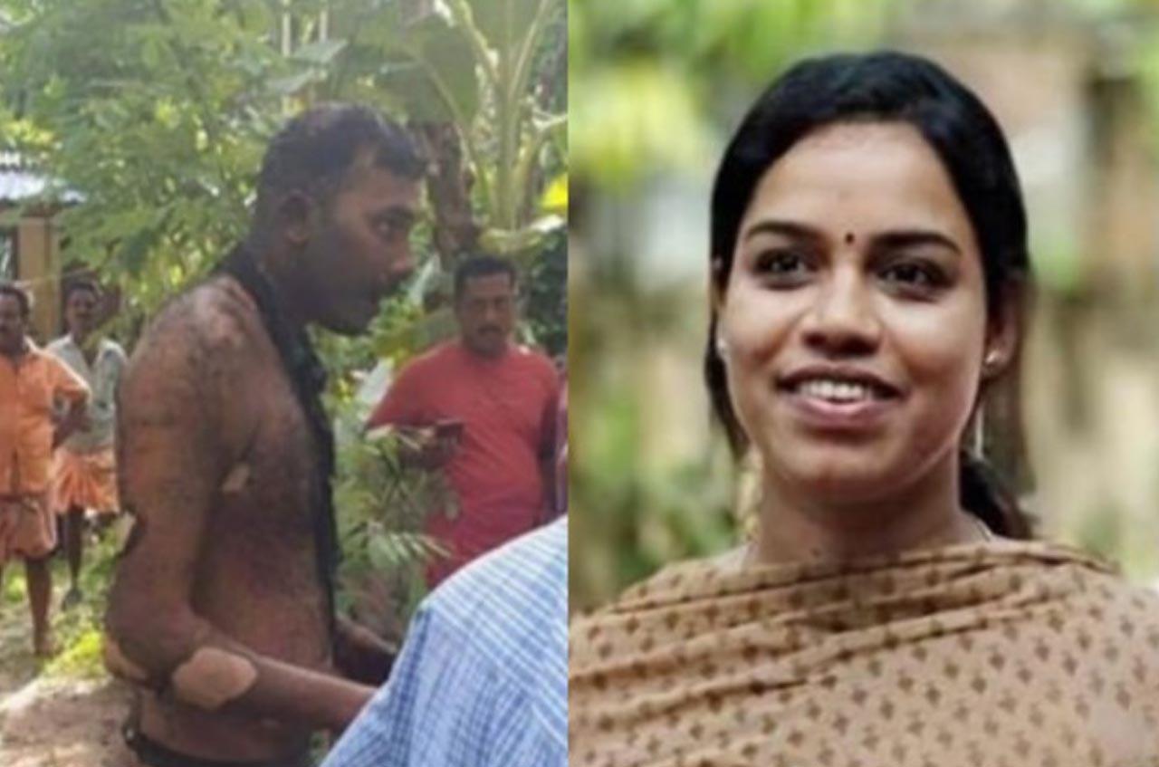 Horrible! Woman police officer, Soumya, set on fire in Kerala, dies; attacker, Ajas in ICU