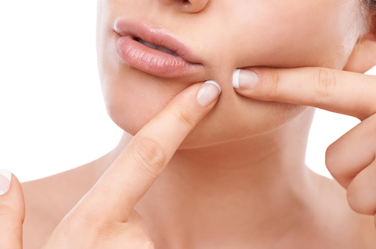 How to prevent the growth of acne ?